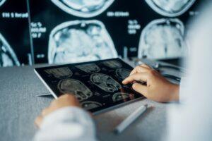 radiologist examining scans